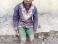 This Rubavu Boy has Bomb Fragments Shelled from DR Congo Lodged in his Head